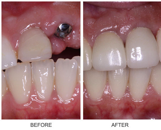 Porcelain veneers and an implant crown