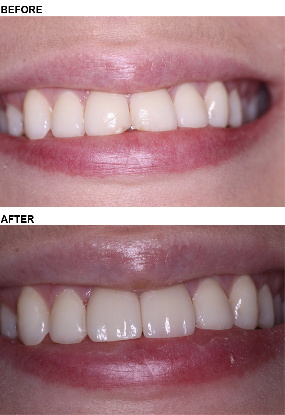 This is a case just completed that replaces old failing bonding and chipped front teeth with beautiful porcelain veneers.